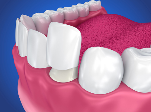 Why Would Dental Crowns Be Needed