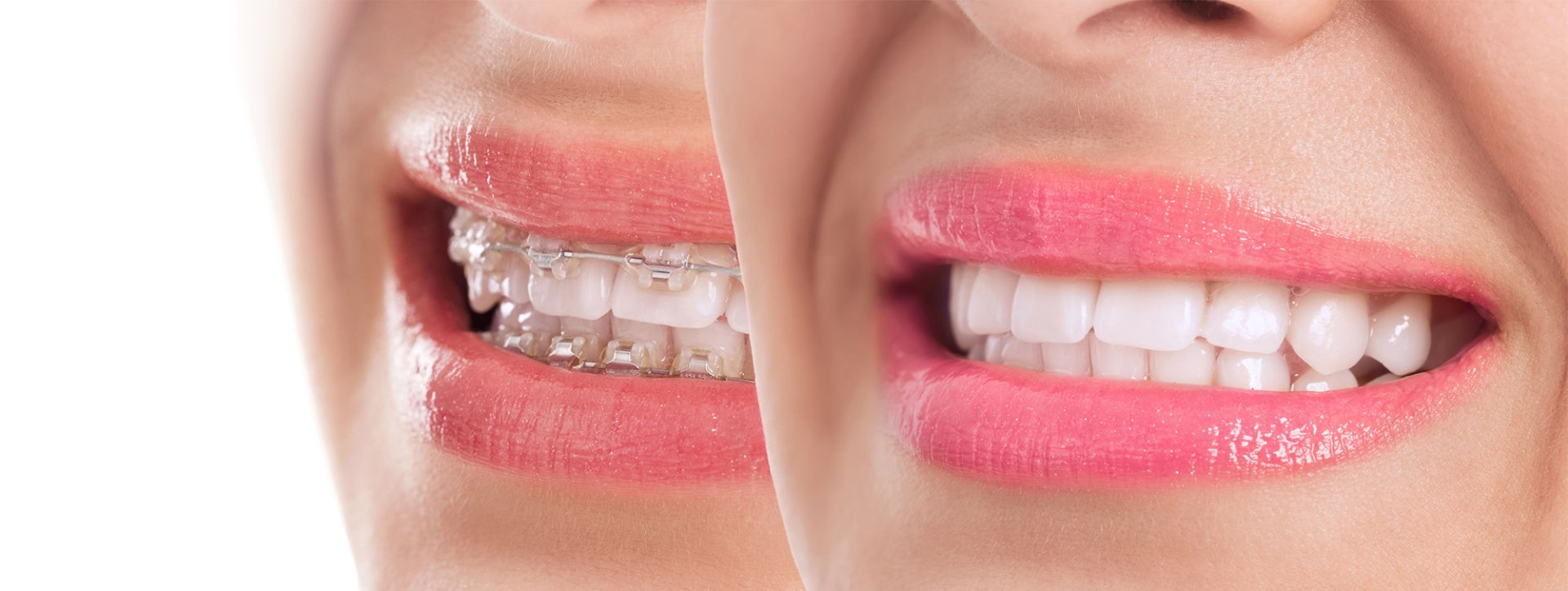 Things To Consider When Researching Invisalign Brace